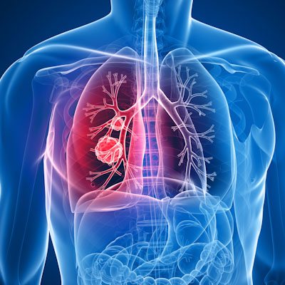 Immunotherapies battle for lead in lung cancer